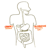 What are Crohn's & colitis?